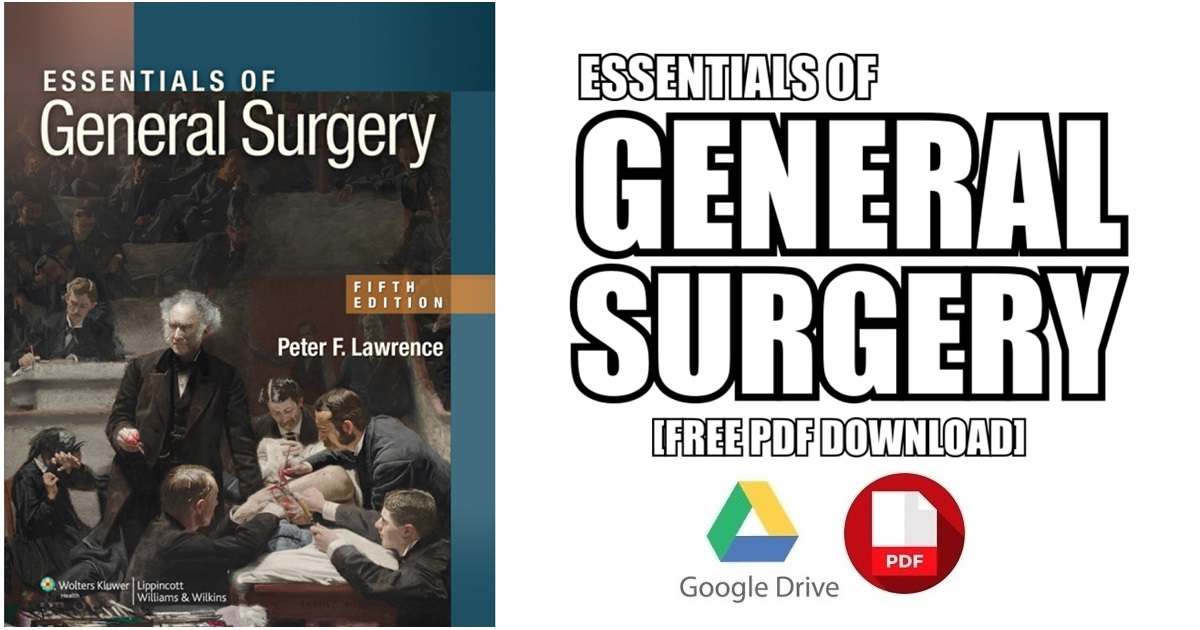Essentials of General Surgery PDF Free Download [Direct Link]