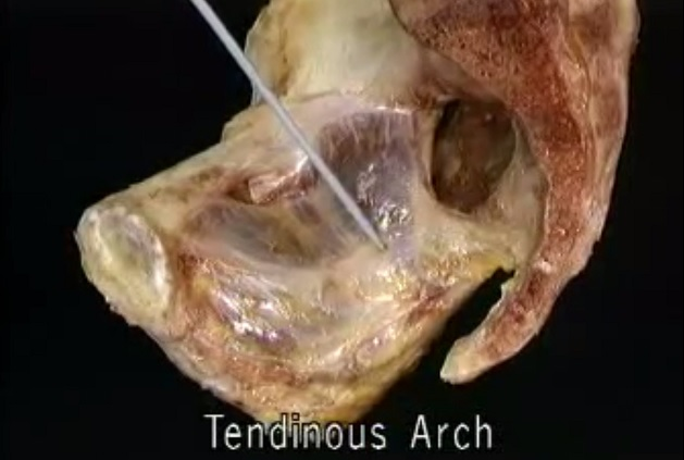 Acland Anatomy Video Lectures Free Download [HD Quality] | Medicos ...
