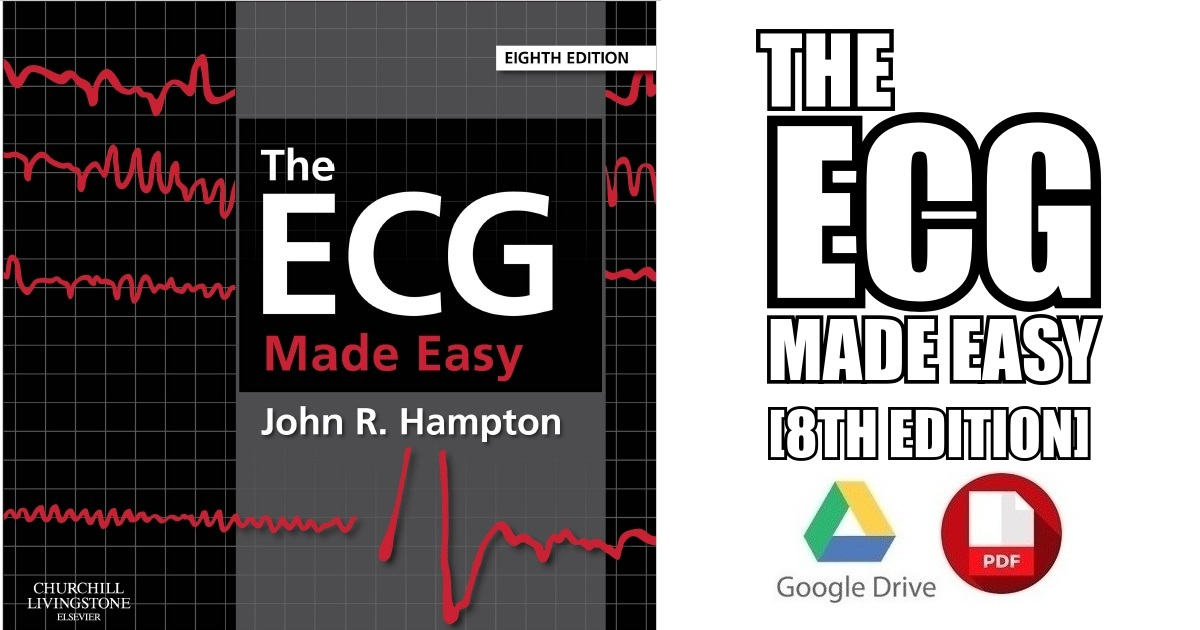 The Ecg Made Easy 8th Edition Pdf Free Download Direct Link