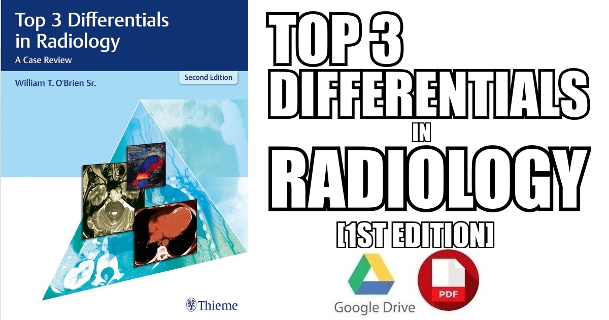 Top 3 Differentials in Radiology: A Case Review 1st Edition PDF