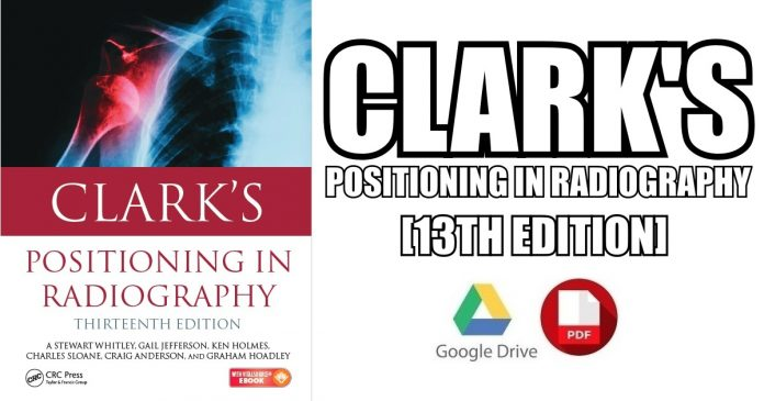Clark's Positioning in Radiography 13th Edition PDF