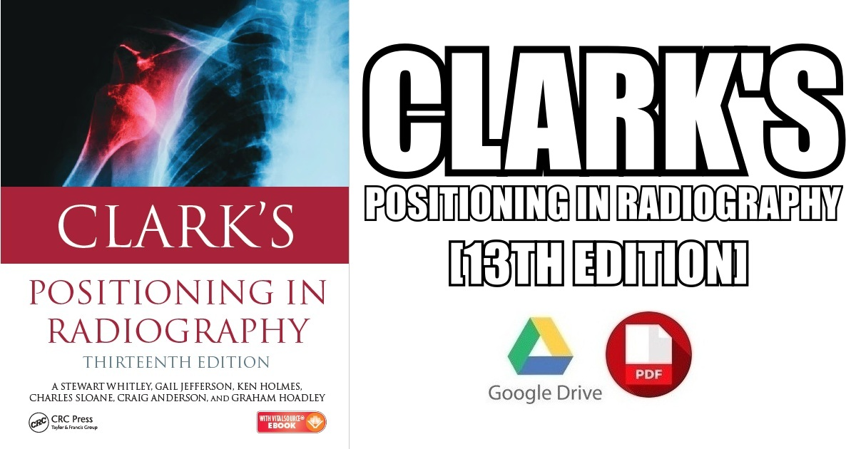 Clark\'s Positioning in Radiography 13th Edition PDF Free Download