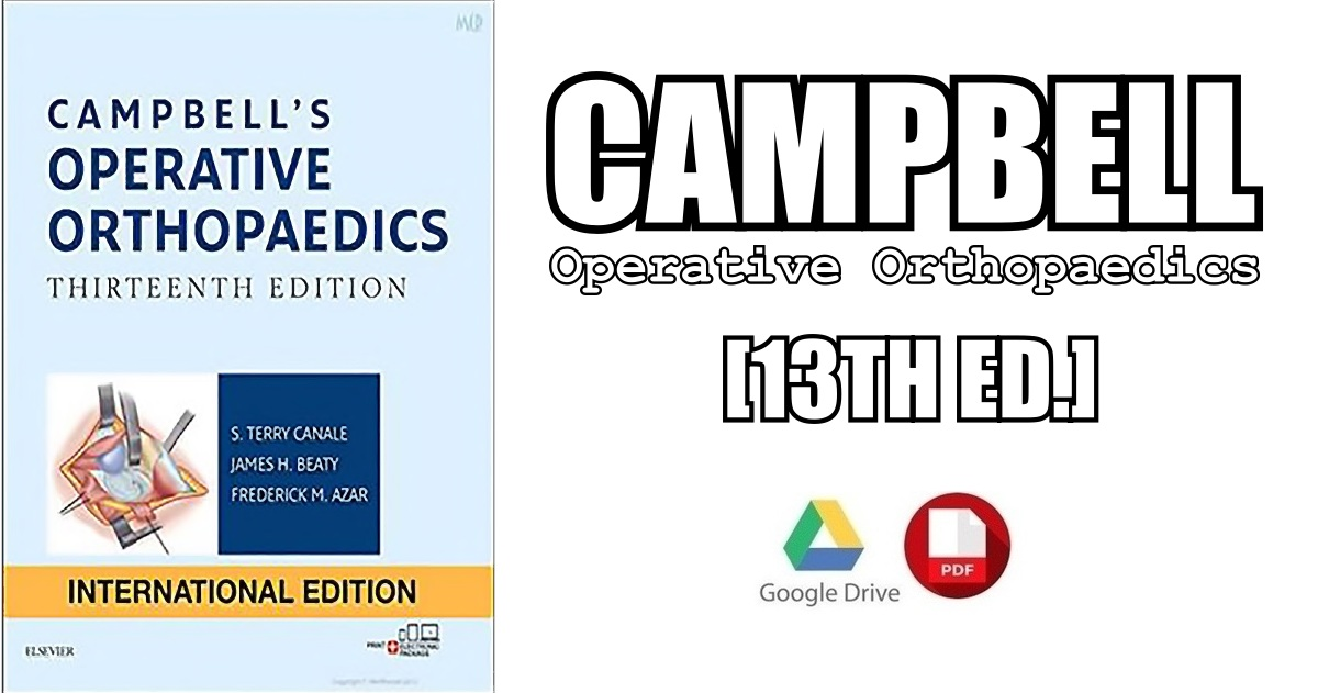 Campbell S Operative Orthopaedics 4 Volume Set 13th Edition Pdf Free