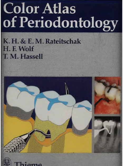 Color Atlas of Dental Medicine: Periodontology PDF