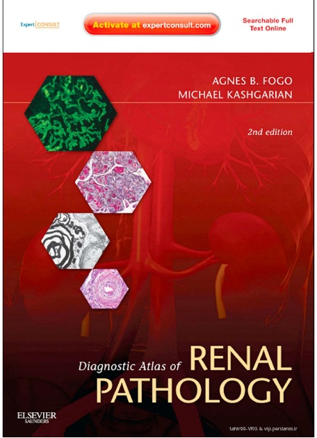 Diagnostic Atlas of Renal Pathology 2nd Edition PDF
