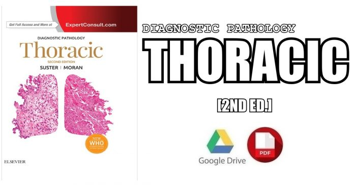 Diagnostic Pathology Thoracic 2nd Edition PDF