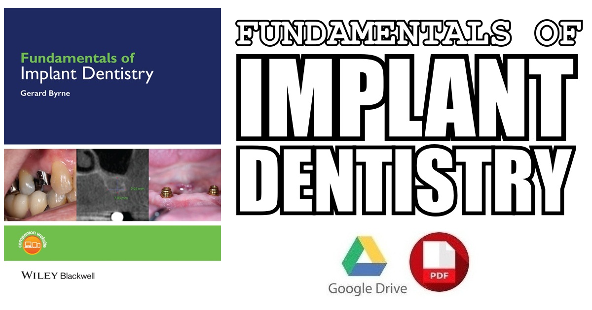 Fundamentals of Implant Dentistry 1st Edition PDF