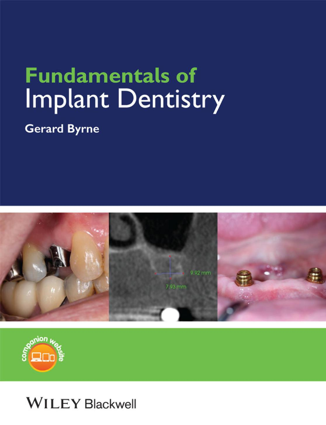 Fundamentals of Implant Dentistry Prosthodontic Principles PDF
