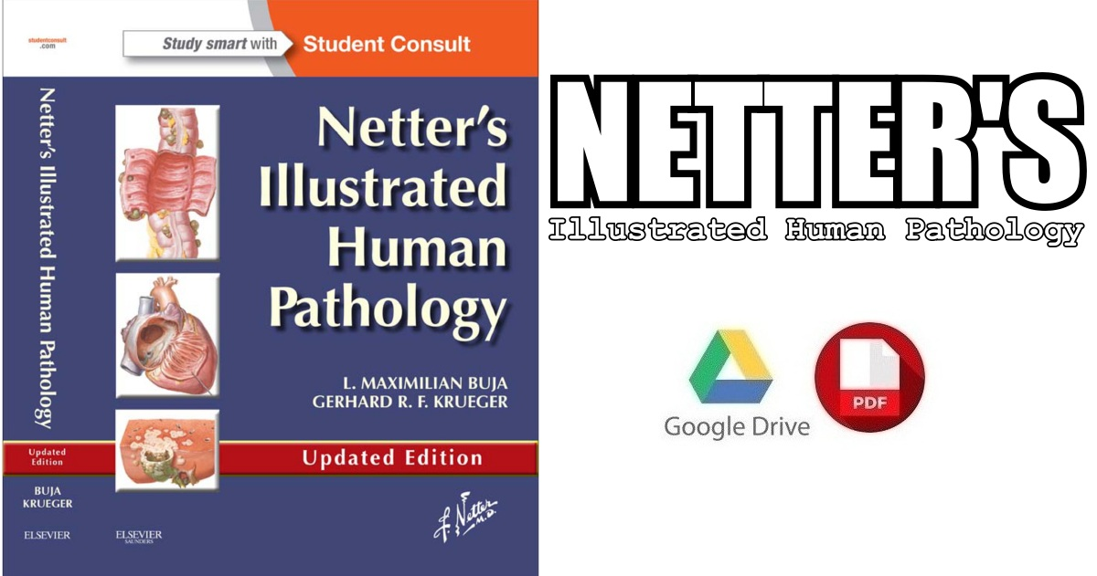 Netters Illustrated Human Pathology Updated Edition Pdf Free Download