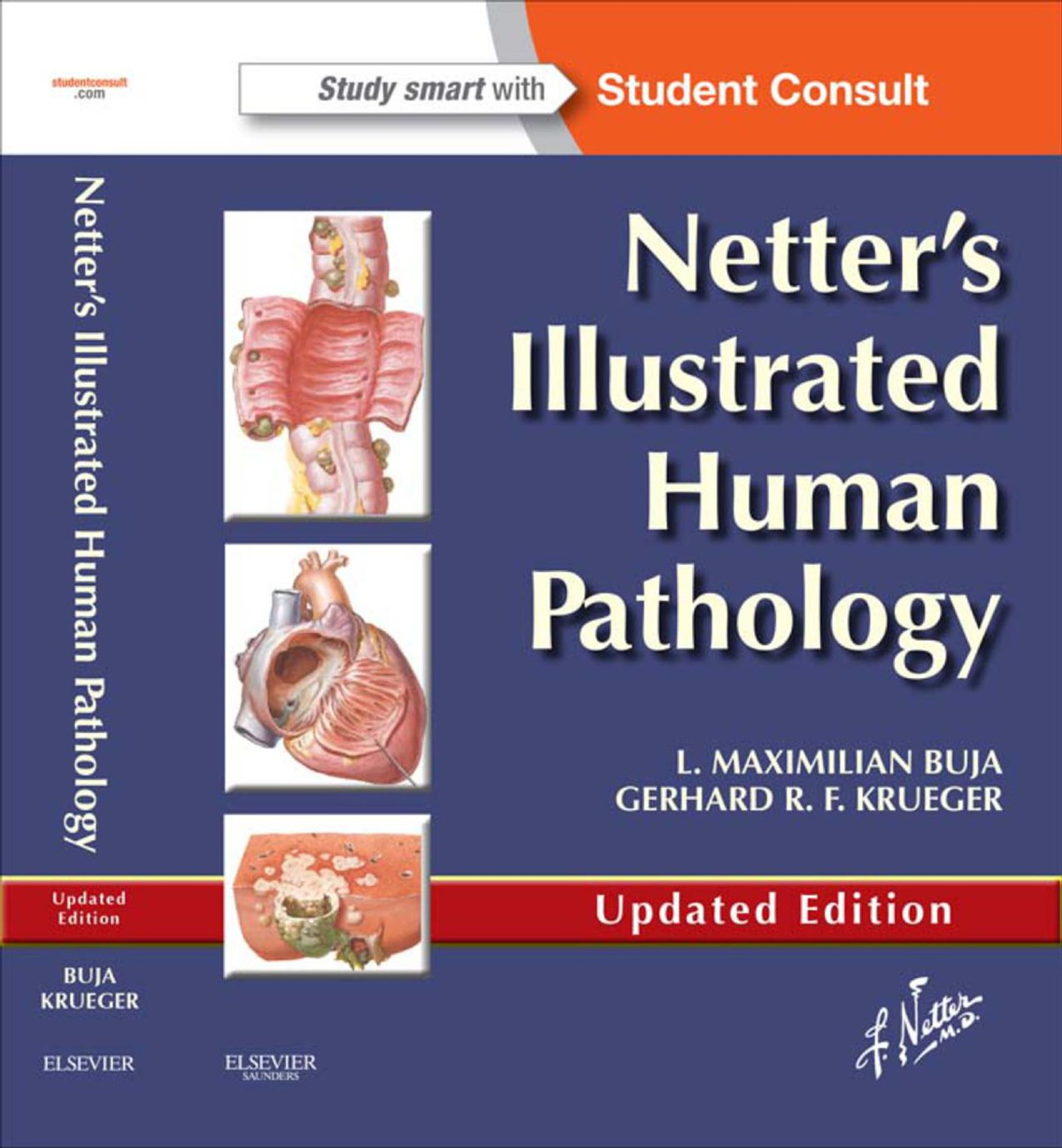Netter's Illustrated Human Pathology Updated Edition PDF