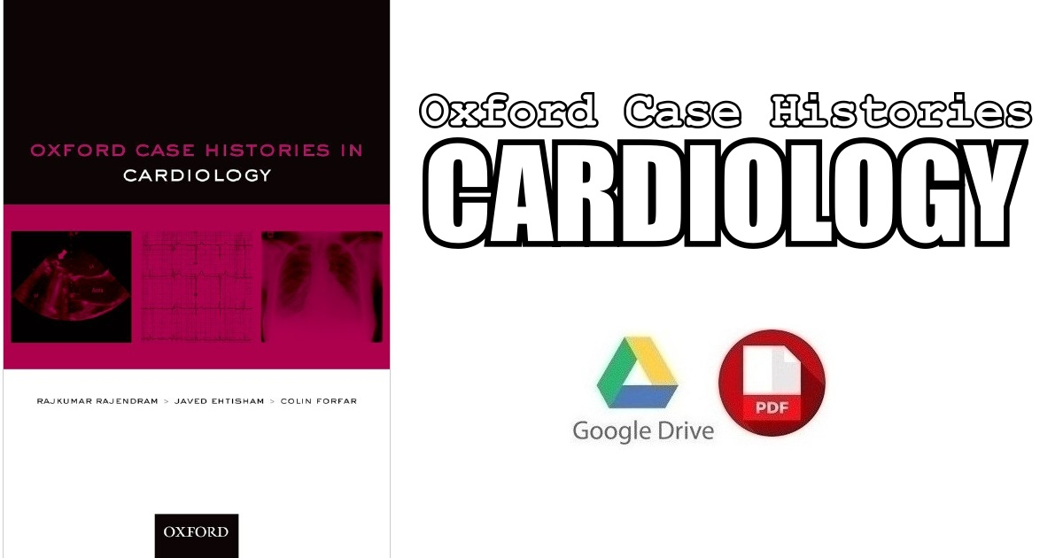 Oxford Case Histories in Cardiology PDF