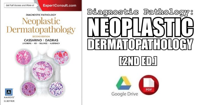 Diagnostic Pathology: Neoplastic Dermatopathology 2nd Edition PDF