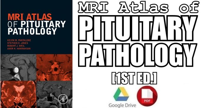 MRI Atlas of Pituitary Pathology 1st Edition PDF
