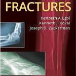 Handbook of Fractures 5th Edition PDF