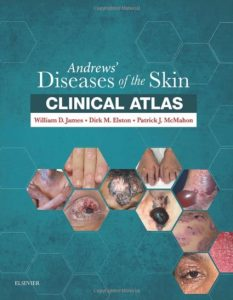 Andrews' Diseases of the Skin Clinical Atlas PDF