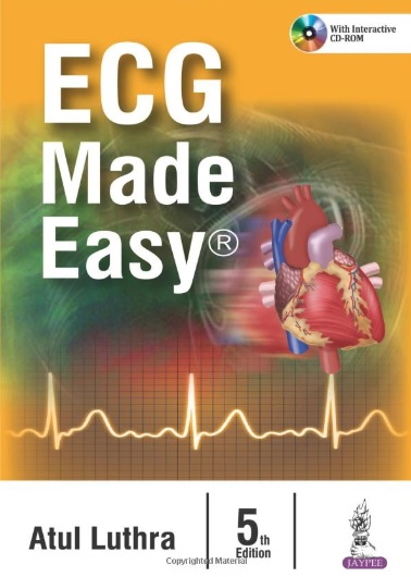 ECG Made Easy PDF