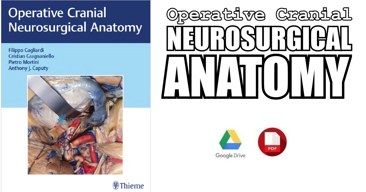 Operative Cranial Neurosurgical Anatomy 1st Edition Pdf Free Download
