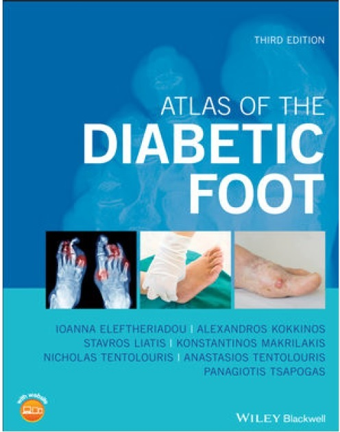 Atlas of the Diabetic Foot 3rd Edition PDF
