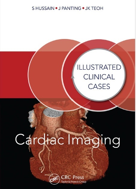Cardiac Imaging: Illustrated Clinical Cases 1st Edition PDF