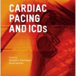 Cardiac Pacing and ICDs 6th Edition PDF