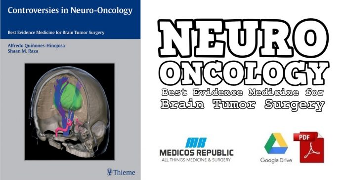 Controversies in Neuro-Oncology PDF