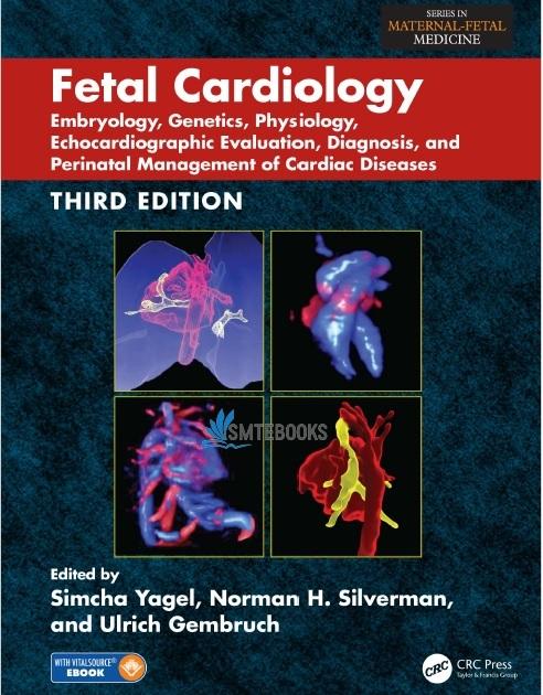Fetal Cardiology 3rd Edition PDF