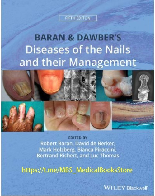 Baran and Dawber's Diseases of the Nails and their Management 5th Edition PDF