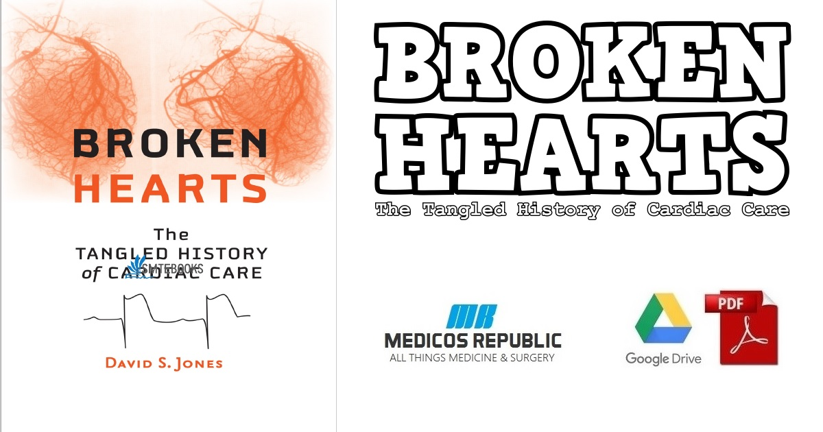 Broken Hearts: The Tangled History of Cardiac Care 1st Edition PDF