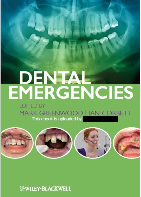 Dental Emergencies 1st Edition PDF