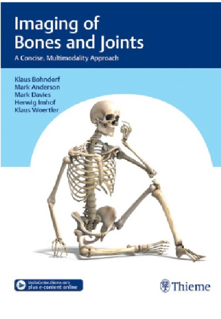 Bones And Joints A Concise Multimodality Approach PDF