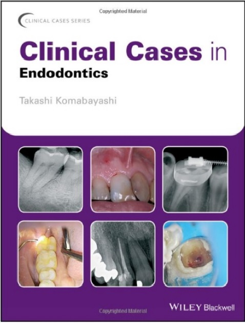 Clinical Cases in Endodontics PDF